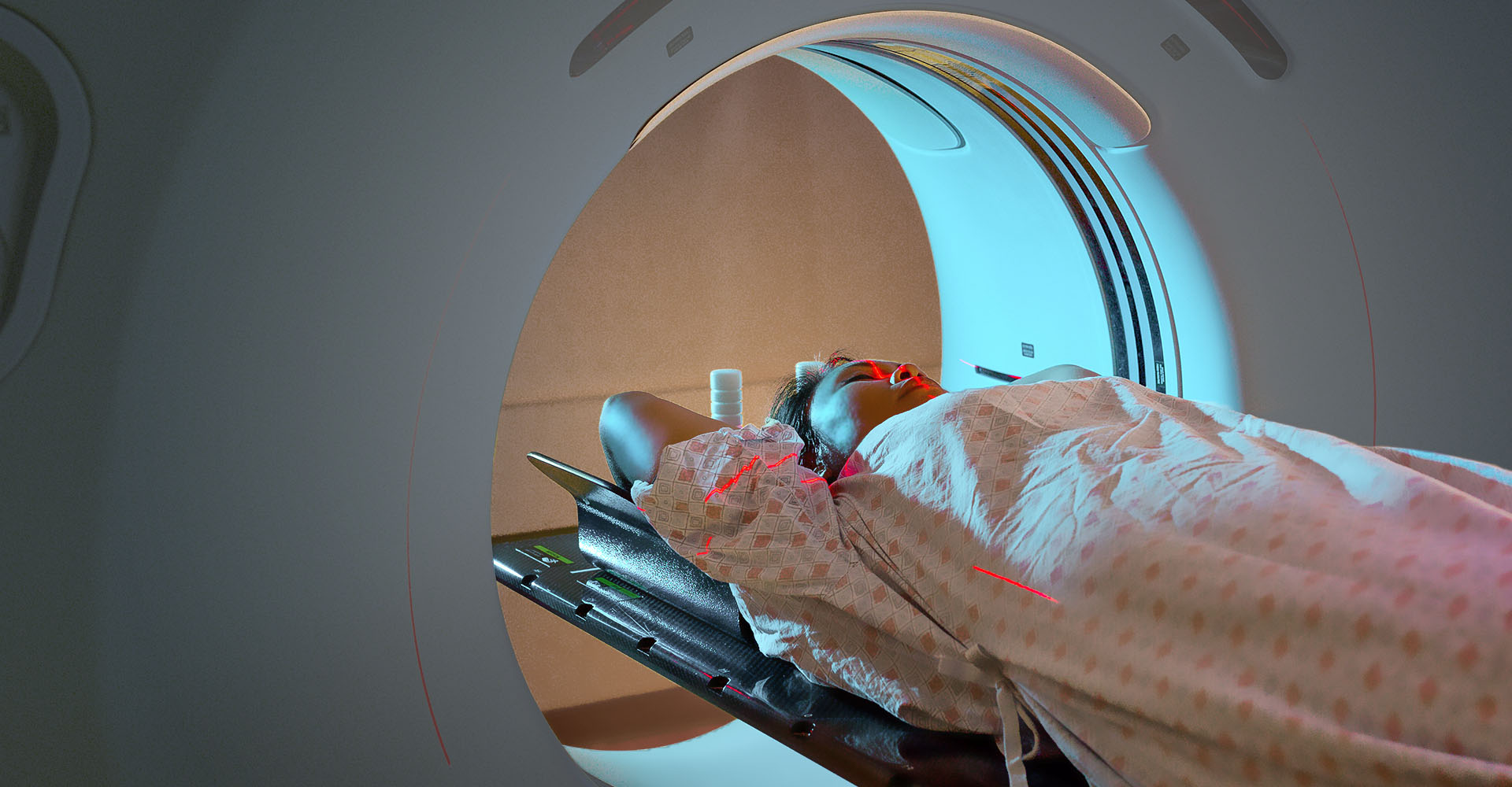 Women being treated with Radiotherapy