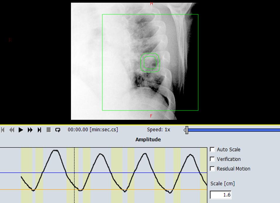 Respiratory Gating Image