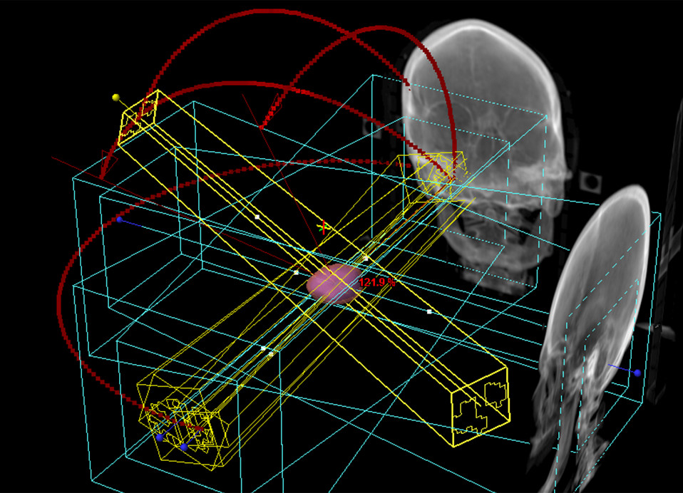 Sterotactic Radiosurgery